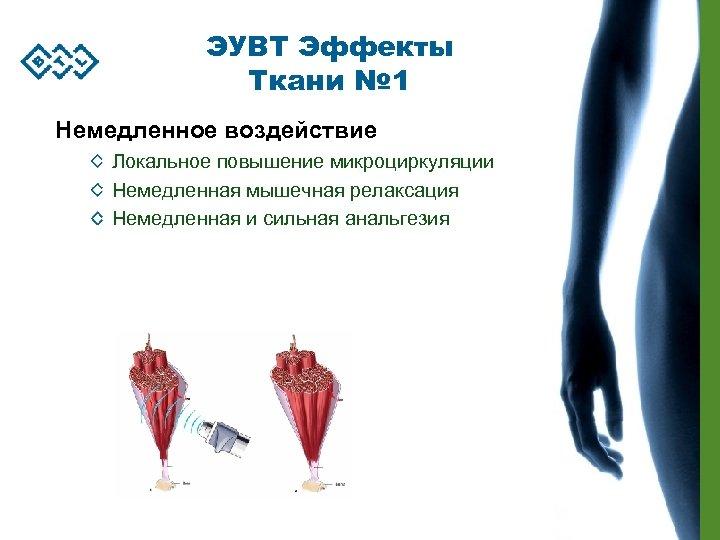 ЭУВТ Эффекты Ткани № 1 Немедленное воздействие Локальное повышение микроциркуляции Немедленная мышечная релаксация Немедленная