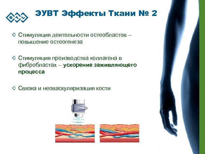 ЭУВТ Эффекты Ткани № 2 Стимуляция деятельности остеобластов – повышение остеогенеза Стимуляция производства коллагена