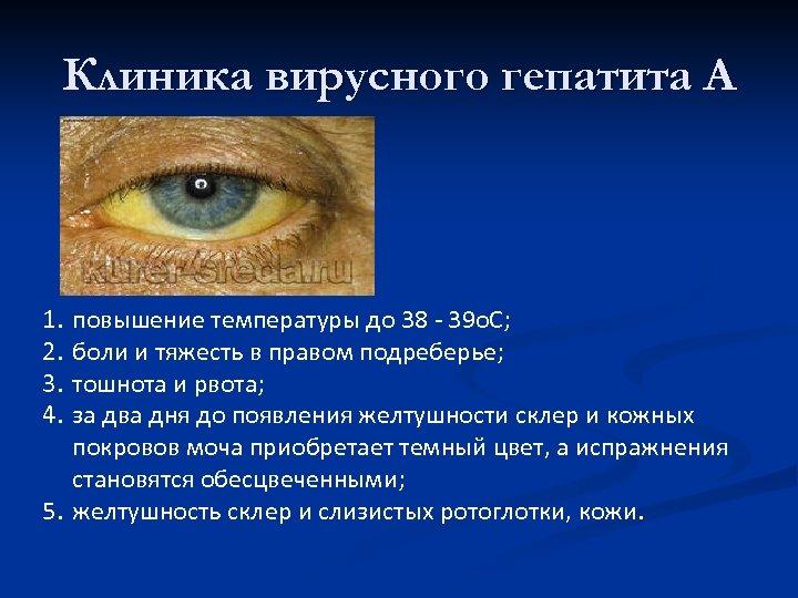 Клиника вирусного гепатита А 1. 2. 3. 4. повышение температуры до 38 - 39