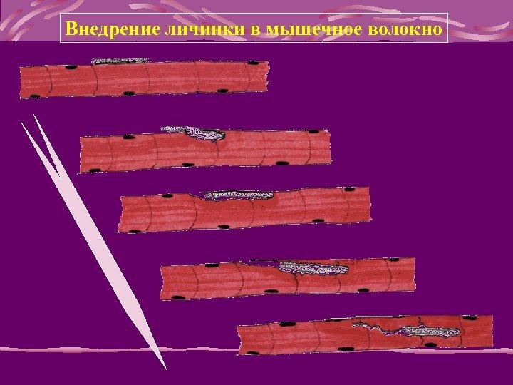 Внедрение личинки в мышечное волокно