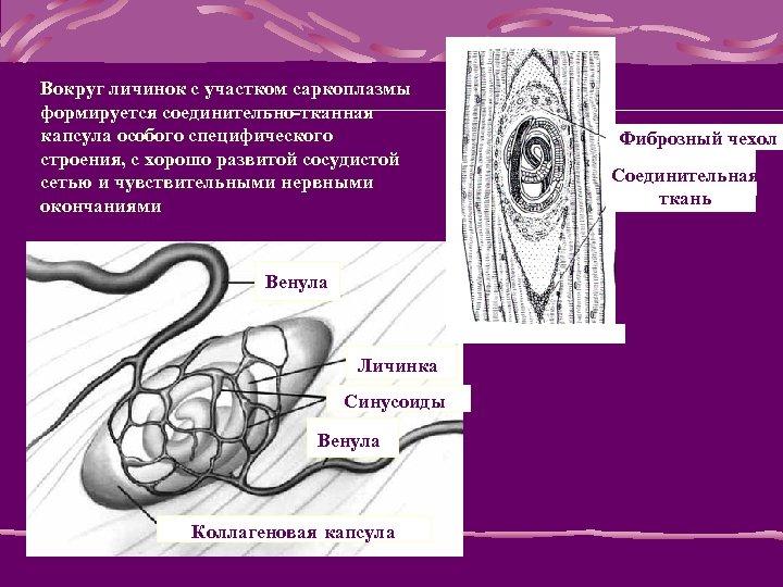 Вокруг личинок с участком саркоплазмы формируется соединительно-тканная капсула особого специфического строения, с хорошо развитой