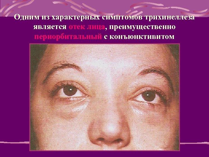 Одним из характерных симптомов трихинеллеза является отек лица, преимущественно периорбитальный с конъюнктивитом