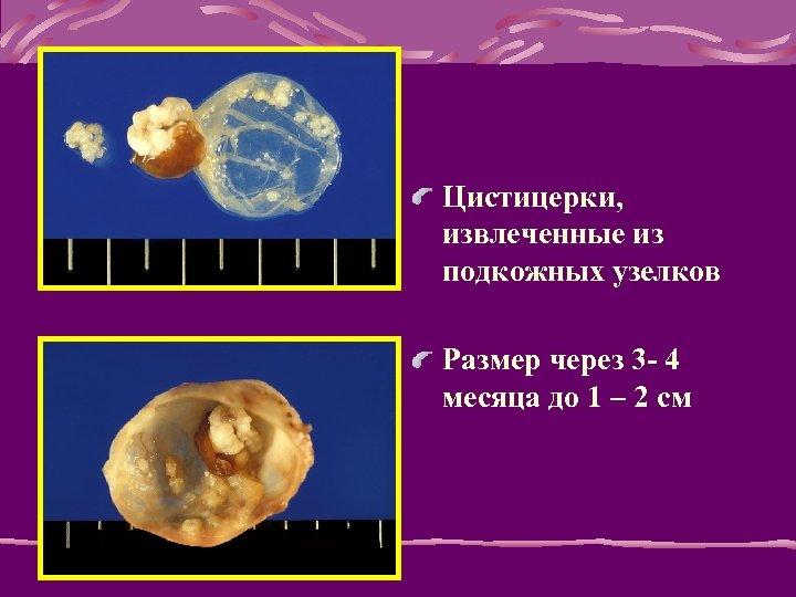 Цистицерки, извлеченные из подкожных узелков Размер через 3 - 4 месяца до 1 –