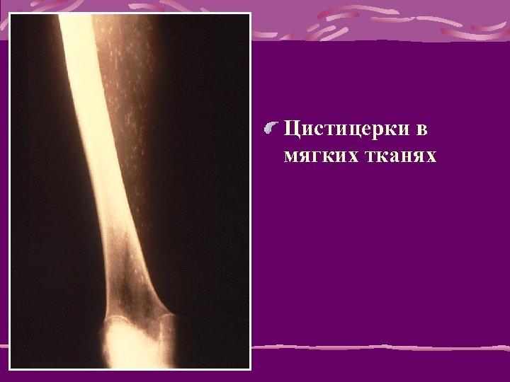 Цистицерки в мягких тканях