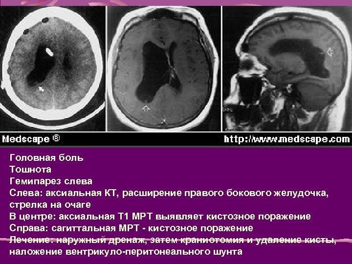 Головная боль Тошнота Гемипарез слева Слева: аксиальная КТ, расширение правого бокового желудочка, стрелка на