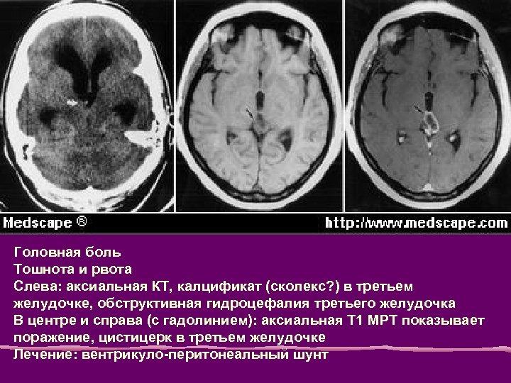 Головная боль Тошнота и рвота Слева: аксиальная КТ, калцификат (сколекс? ) в третьем желудочке,