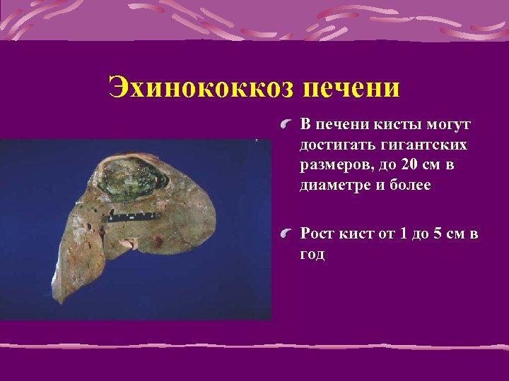 Эхинококкоз печени В печени кисты могут достигать гигантских размеров, до 20 см в диаметре