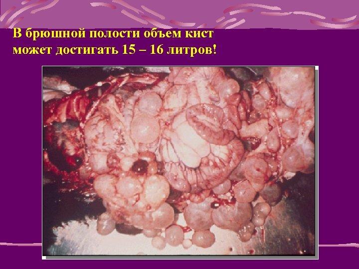 В брюшной полости объем кист может достигать 15 – 16 литров!
