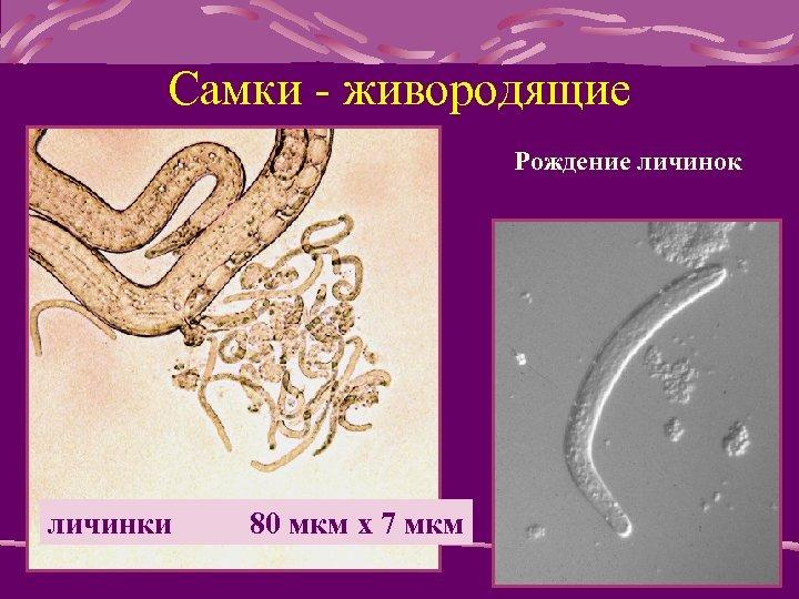 Самки - живородящие Рождение личинок личинки 80 мкм x 7 мкм