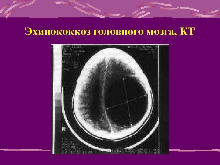 Эхинококкоз головного мозга, КТ
