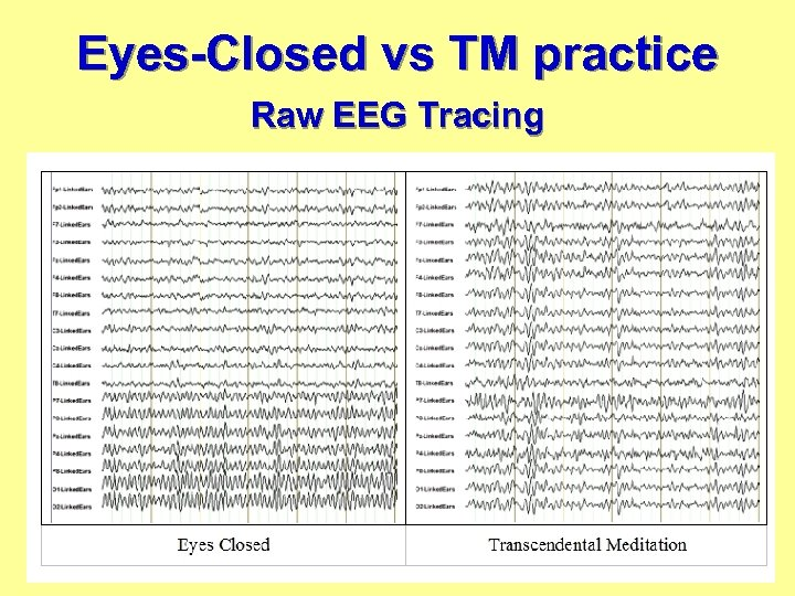 Eyes-Closed vs TM practice Raw EEG Tracing