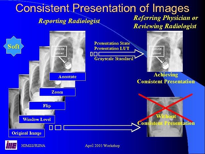 Consistent Presentation of Images Reporting Radiologist Soft Area Of Interest Presentation State Presentation LUT