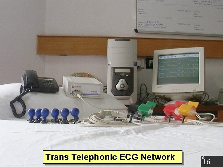 Trans Telephonic ECG Network 16 16