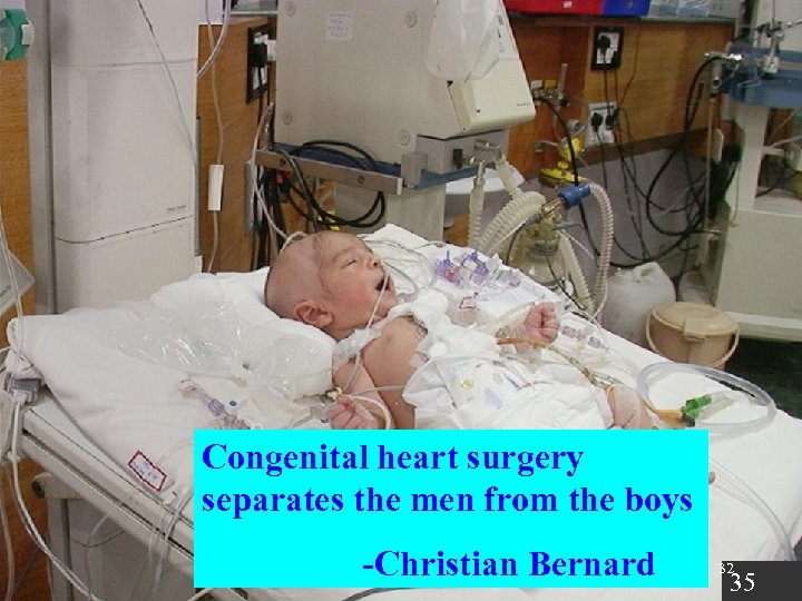 Congenital heart surgery separates the men from the boys -Christian Bernard 32 35