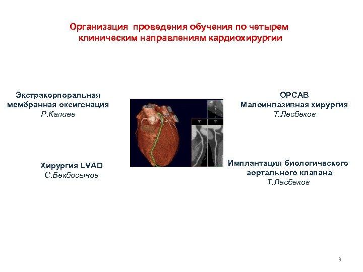 Организация проведения обучения по четырем клиническим направлениям кардиохирургии Экстракорпоральная мембранная оксигенация Р. Калиев Хирургия