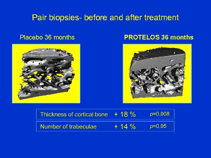 Pair biopsies- before and after treatment Placebo 36 months PROTELOS 36 months