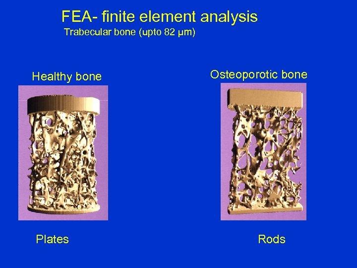FEA- finite element analysis Trabecular bone (upto 82 µm) Healthy bone Plates Osteoporotic bone