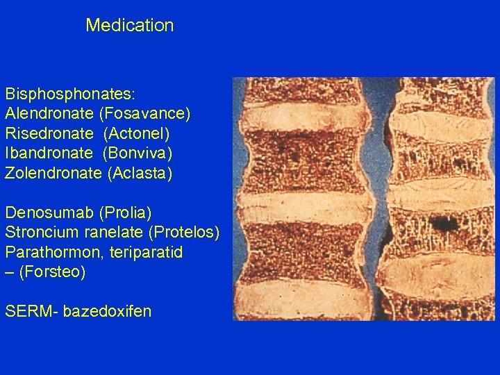 Medication Bisphonates: Alendronate (Fosavance) Risedronate (Actonel) Ibandronate (Bonviva) Zolendronate (Aclasta) Denosumab (Prolia) Stroncium ranelate