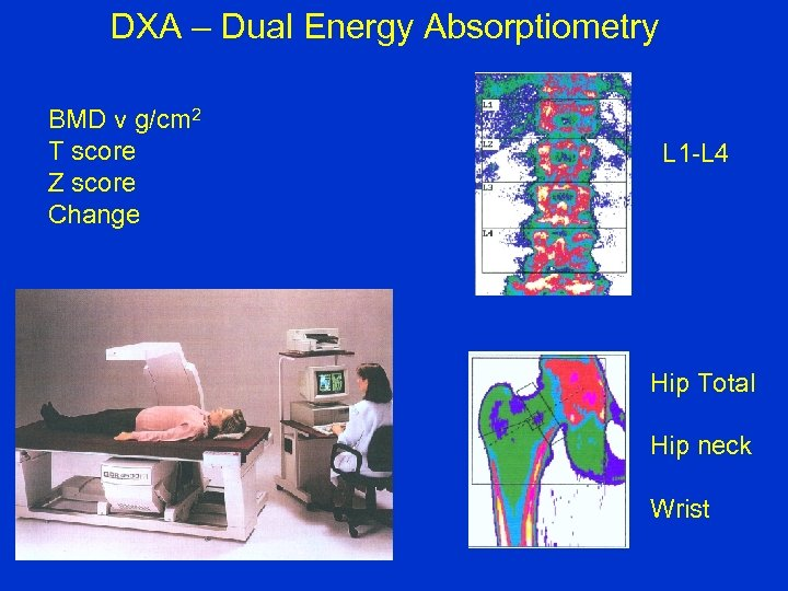 DXA – Dual Energy Absorptiometry BMD v g/cm 2 T score Z score Change