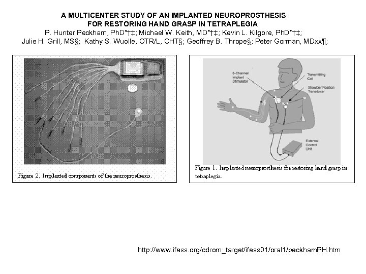 A MULTICENTER STUDY OF AN IMPLANTED NEUROPROSTHESIS FOR RESTORING HAND GRASP IN TETRAPLEGIA P.