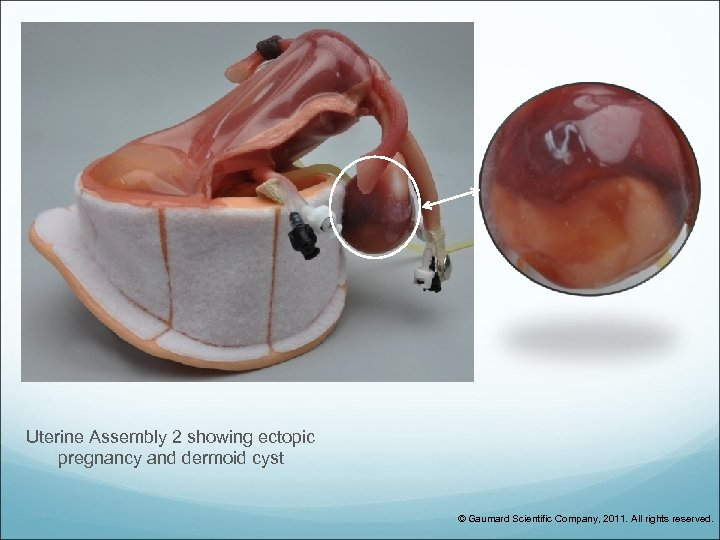 Uterine Assembly 2 showing ectopic pregnancy and dermoid cyst © Gaumard Scientific Company, 2011.
