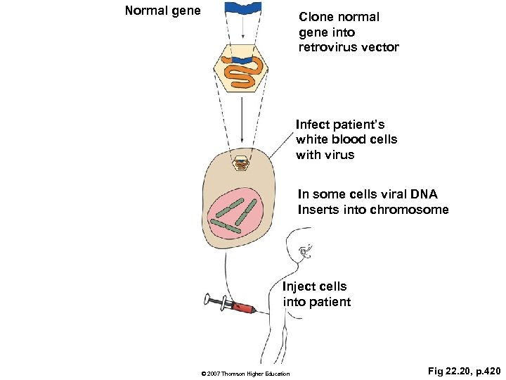 Normal gene Clone normal gene into retrovirus vector Infect patient's white blood cells with