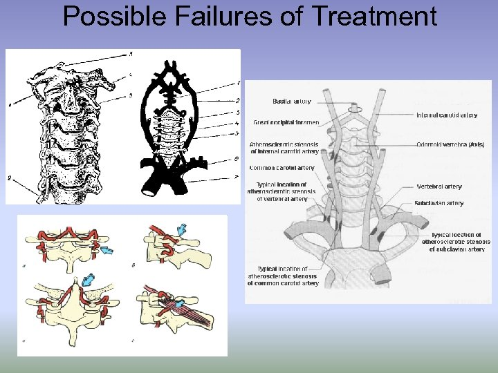 Possible Failures of Treatment