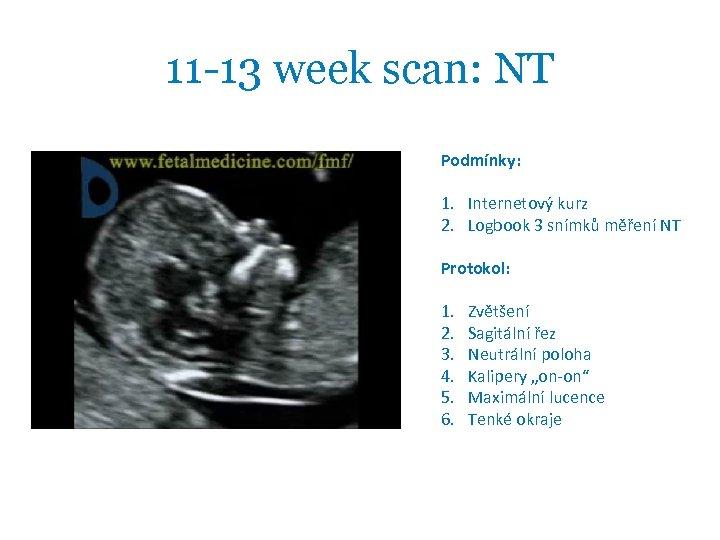 11 -13 week scan: NT Podmínky: 1. Internetový kurz 2. Logbook 3 snímků měření
