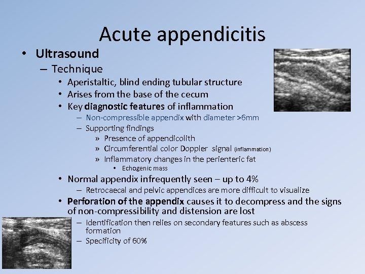 Acute appendicitis • Ultrasound – Technique • Aperistaltic, blind ending tubular structure • Arises
