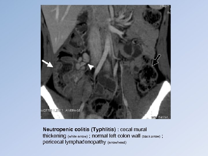 Neutropenic colitis (Typhlitis) : cecal mural thickening (white arrow) ; normal left colon wall