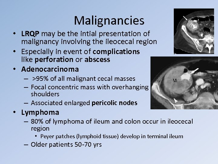 Malignancies • LRQP may be the intial presentation of malignancy involving the ileocecal region