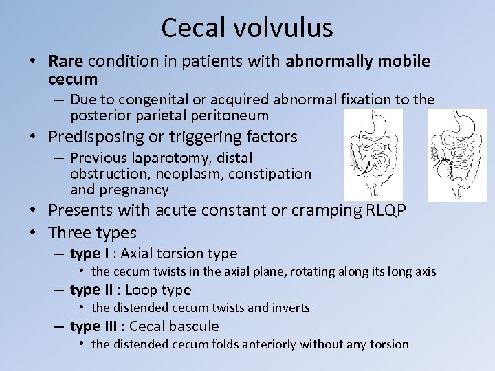 Cecal volvulus • Rare condition in patients with abnormally mobile cecum – Due to