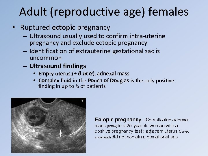 Adult (reproductive age) females • Ruptured ectopic pregnancy – Ultrasound usually used to confirm