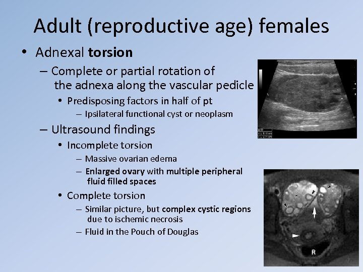 Adult (reproductive age) females • Adnexal torsion – Complete or partial rotation of the