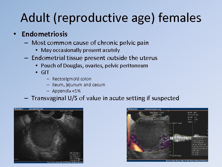 Adult (reproductive age) females • Endometriosis – Most common cause of chronic pelvic pain