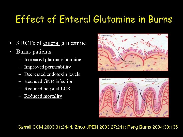 Effect of Enteral Glutamine in Burns • 3 RCTs of enteral glutamine • Burns