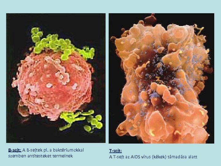 B-sejt: A B-sejtek pl. a baktériumokkal szemben antitesteket termelnek T-sejt: A T-sejt az AIDS