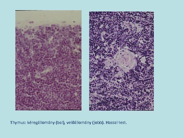 Thymus: kéregállomány (bal), velőállomány (jobb). Hassal test.
