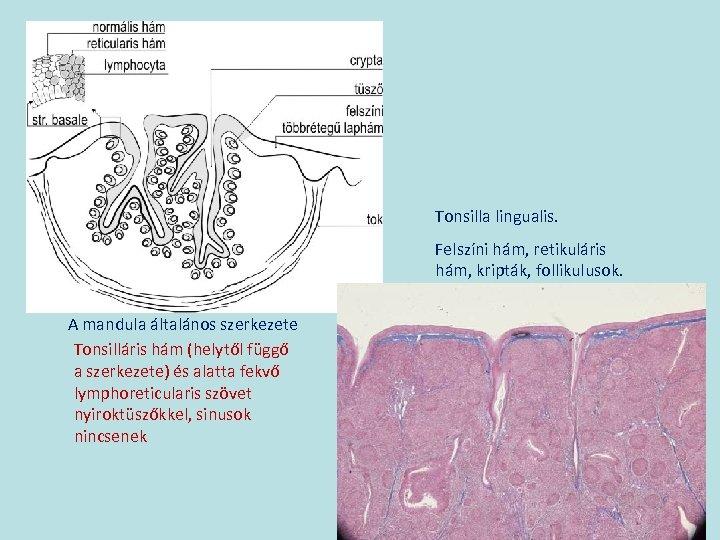 Tonsilla lingualis. Felszíni hám, retikuláris hám, kripták, follikulusok. A mandula általános szerkezete Tonsilláris hám