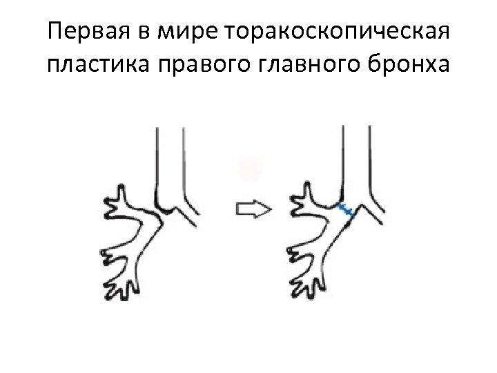 Первая в мире торакоскопическая пластика правого главного бронха
