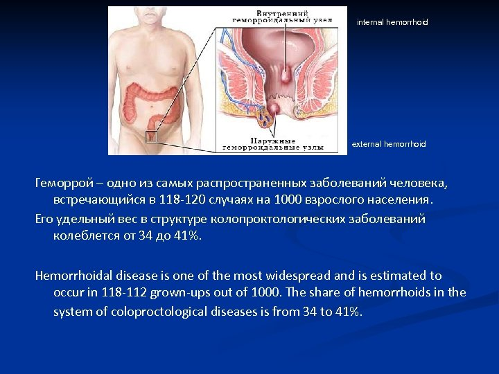 internal hemorrhoid external hemorrhoid Геморрой – одно из самых распространенных заболеваний человека, встречающийся в