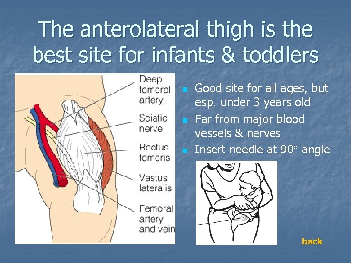 The anterolateral thigh is the best site for infants & toddlers n n n