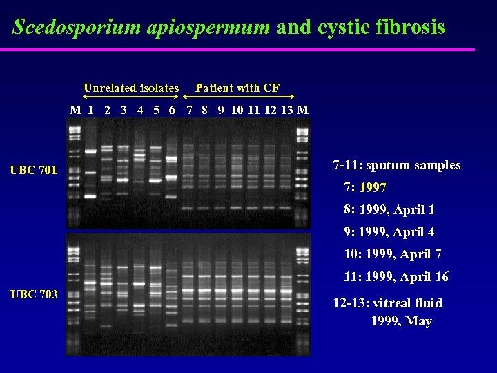 Scedosporium apiospermum and cystic fibrosis Unrelated isolates Patient with CF M 1 2 3