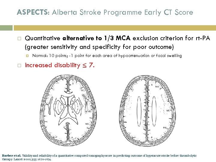 ASPECTS: Alberta Stroke Programme Early CT Score Quantitative alternative to 1/3 MCA exclusion criterion