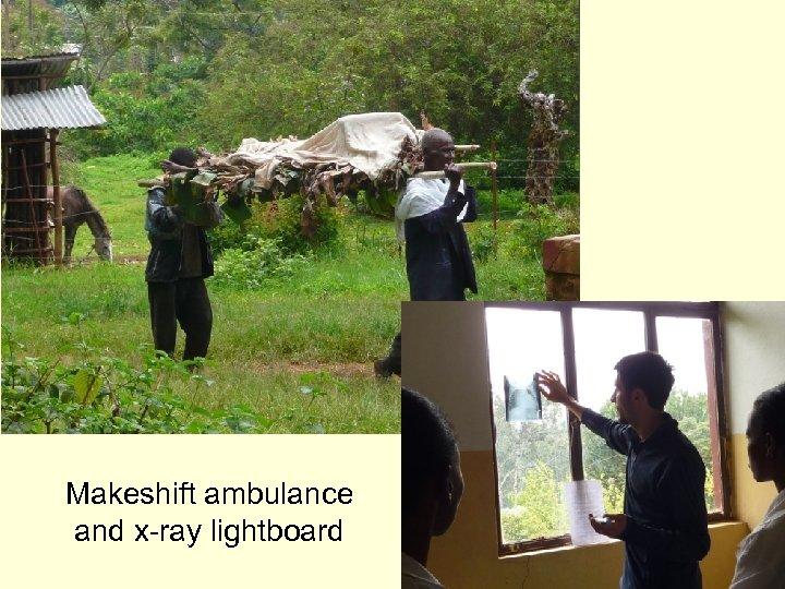 Makeshift ambulance and x-ray lightboard