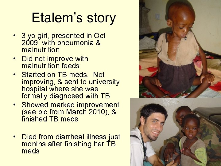 Etalem's story • 3 yo girl, presented in Oct 2009, with pneumonia & malnutrition