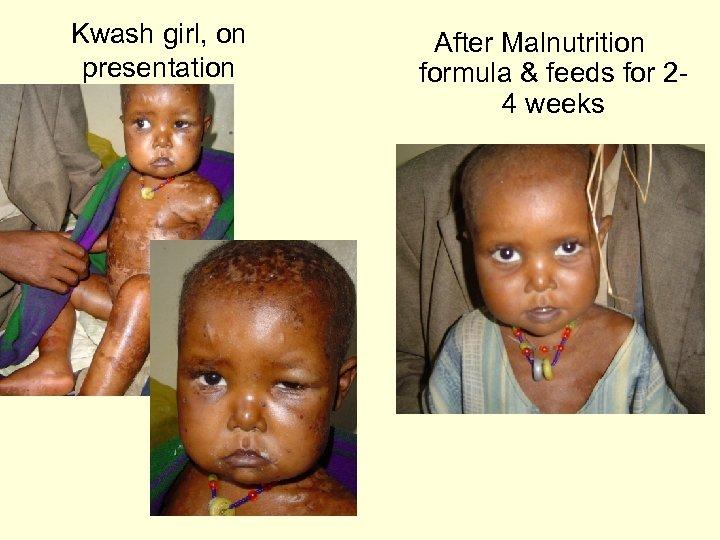 Kwash girl, on presentation After Malnutrition formula & feeds for 24 weeks