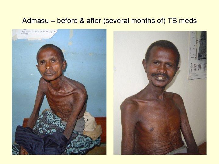 Admasu – before & after (several months of) TB meds