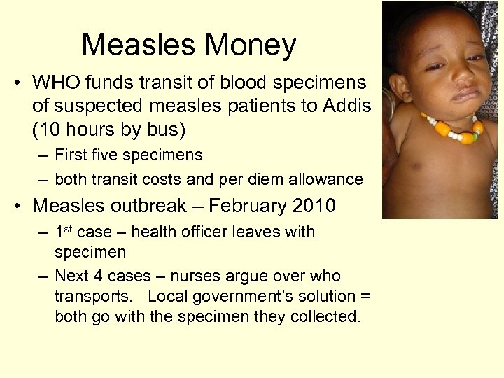 Measles Money • WHO funds transit of blood specimens of suspected measles patients to