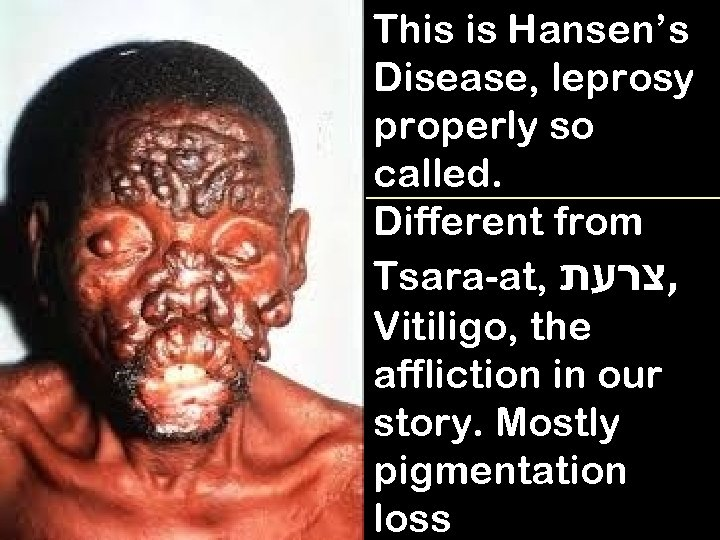 This is Hansen's Disease, leprosy properly so called. Different from Tsara-at, , צרעת Vitiligo,
